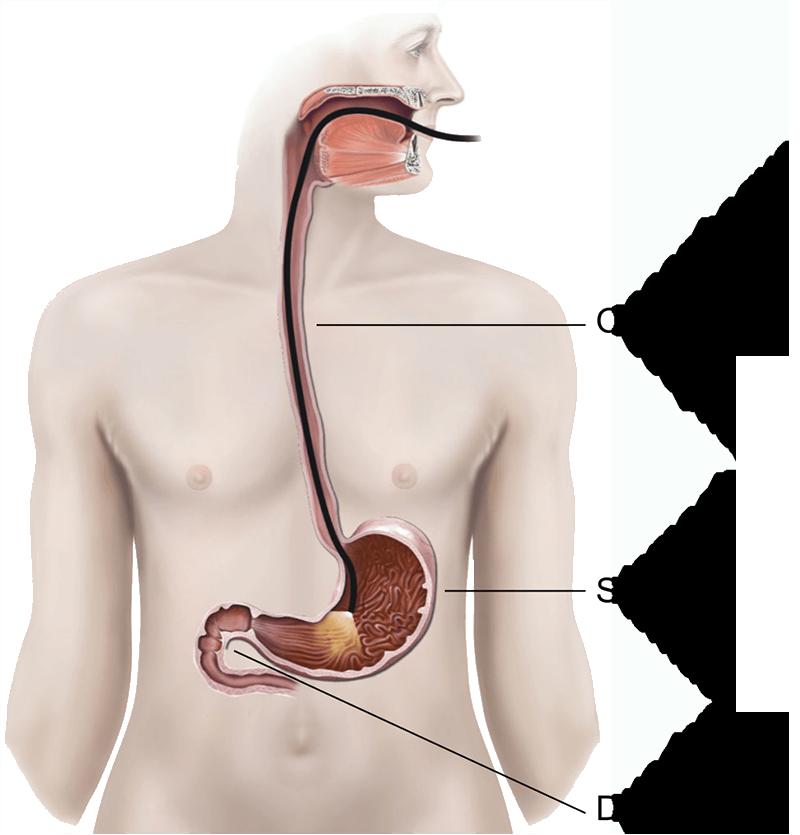 endoscopy-colonoscopy-illustration-tijuana