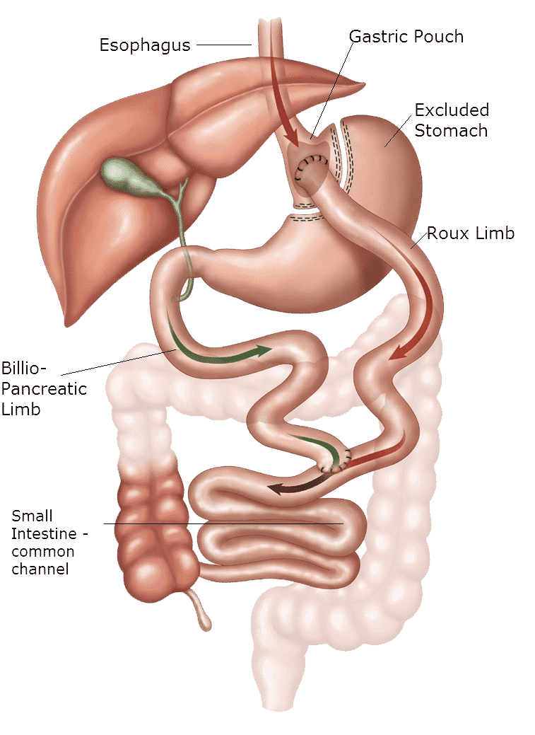 gastric-bypass-surgery-in-tijuana-mexico