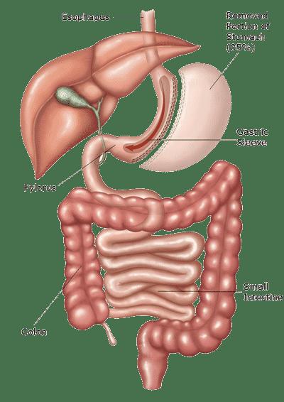 gastric-sleeve-in-tijuana