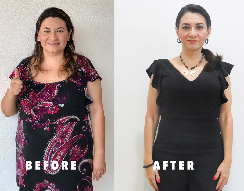 Before and After Photo of Cynthia
